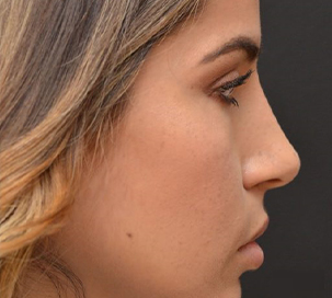 rhinoplasty-after